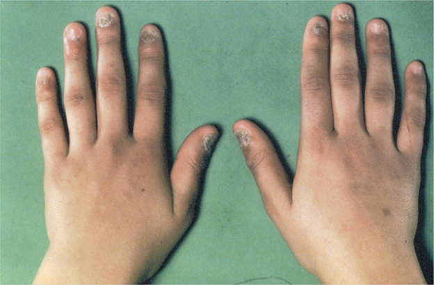 What causes fungus on hands? | Reference.com