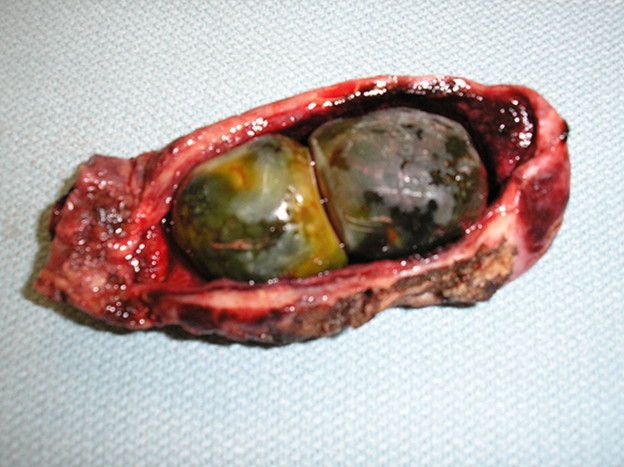 Gallstones - Digestive Fluid Deposits