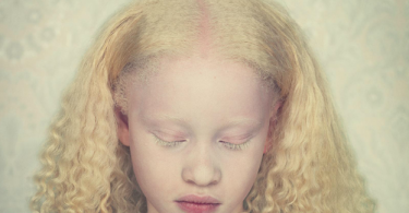 Albinism - Group Of Skin Disorders