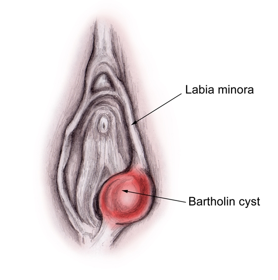 Bartholin's Cyst - A Comprehensive Overview