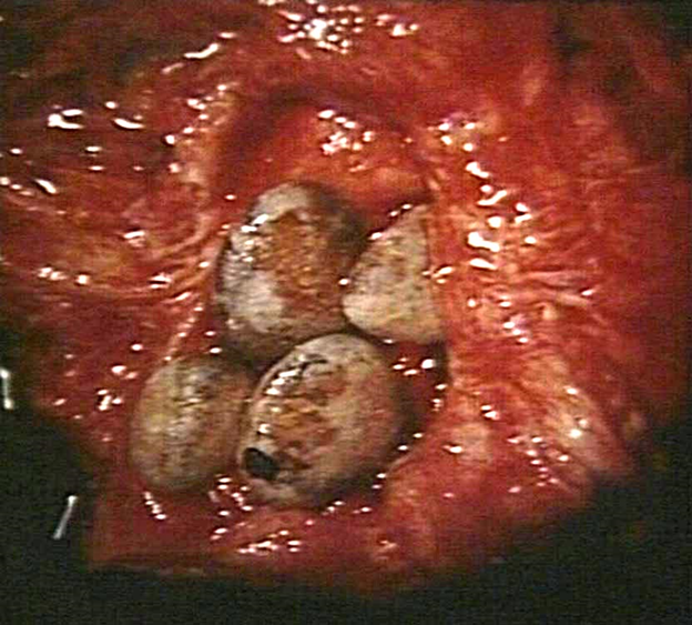 Bladder Stones - Solid Mineral Masses In Bladder