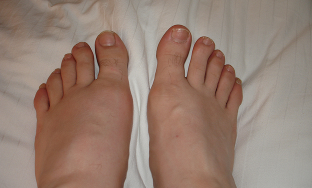 Gout - The Joints Disease