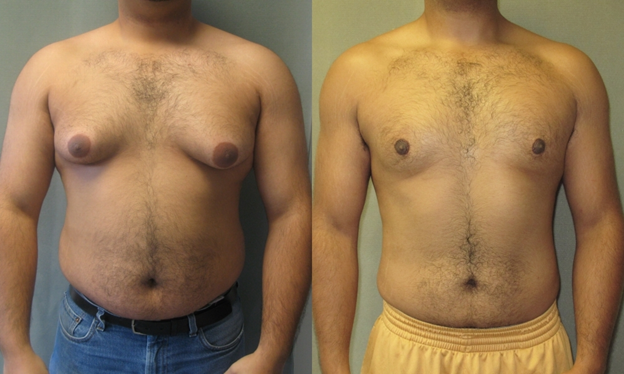Gynecomastia - A Condition That Occur In Males