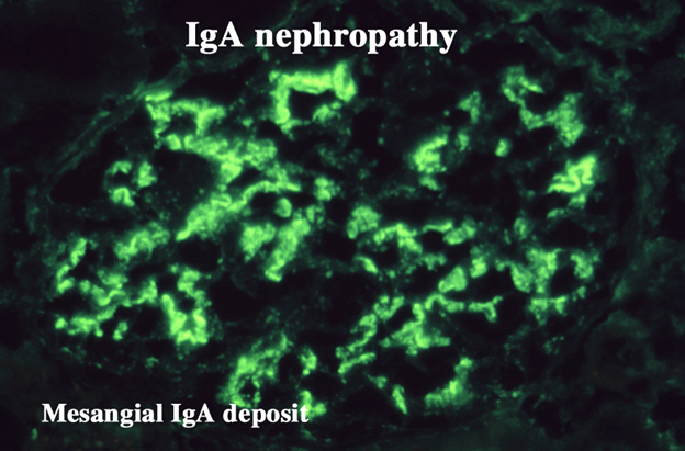 bergers disease iga nephropathy Berger's disease is also named iga nephropathy, which is one of the causes of kidney failure the kids and children are easier to catch this disease and there are no obvious symptoms in the early stage thus, the parents need to take care of their children more carefully berger's disease is an .
