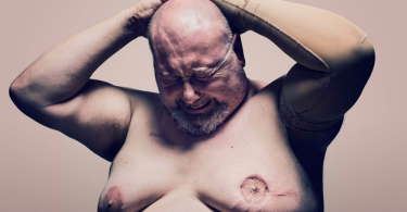 Male Breast Cancer - A Serious Disease