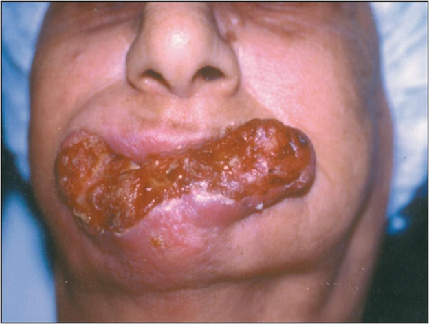 Mouth Cancer   A Fatal Disease