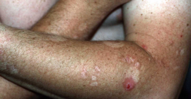 Neurodermatitis - A Skin Condition