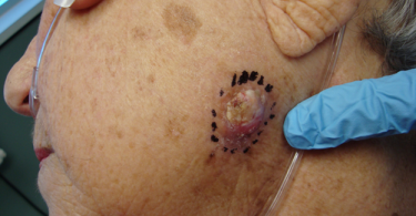 Skin Cancer - Abnormal Skin Cells Growth