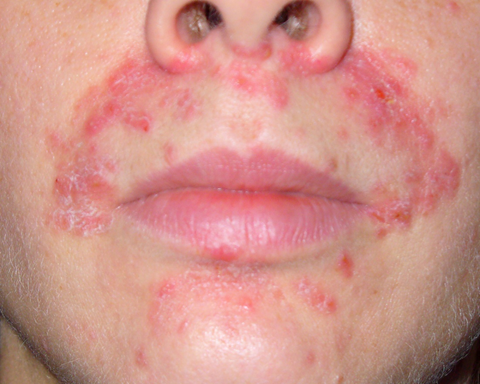 Dermatitis - A Skin Condition