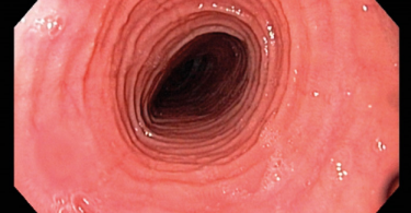 Esophagitis - Inflammation