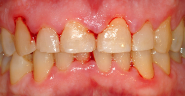 Gingivitis - Periodontal Disease