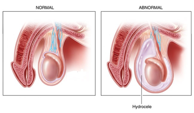 Hydrocele - Fluid-Filled SAC