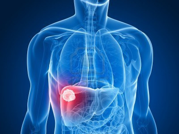 Liver Cancer - A Fatal Disease