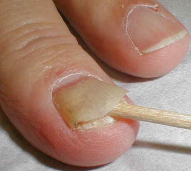 Nail Fungus Symptoms, Causes, Diagnosis and Treatment - Natural ...