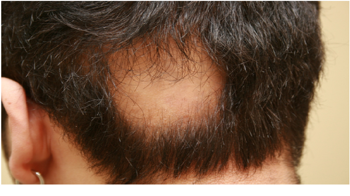 What is alopecia | traction alopecia | androgenic alopecia ...