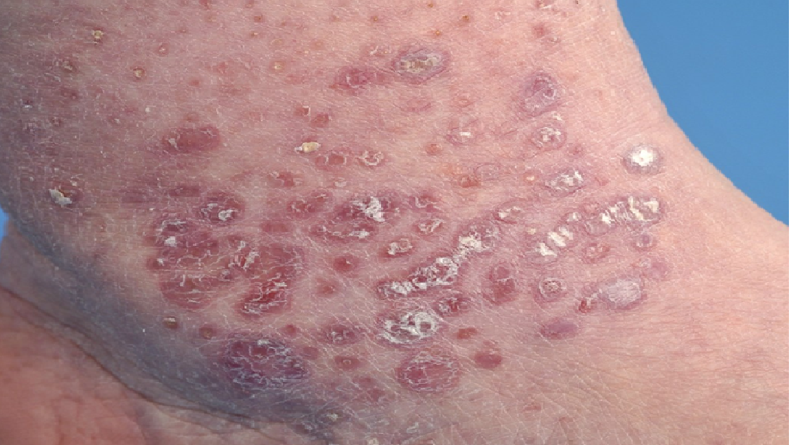 Natural Health Lichen Planus