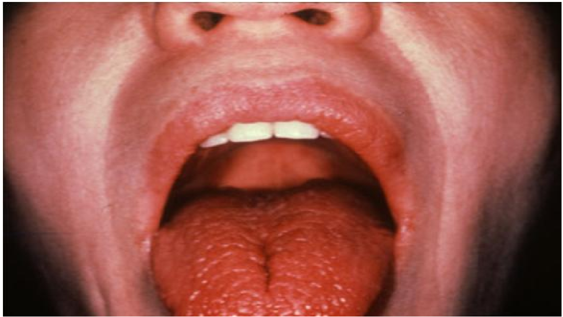 images Sjogrens syndrome and dry mouth