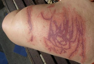 Jellyfish Sting