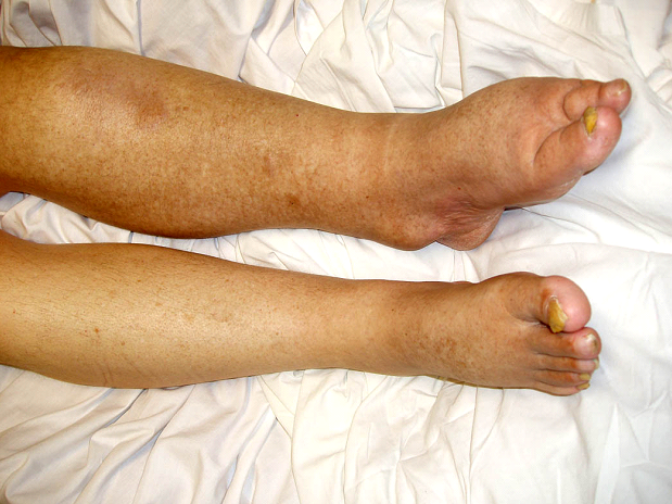 Lymphedema Symptoms Causes Diagnosis And Treatment