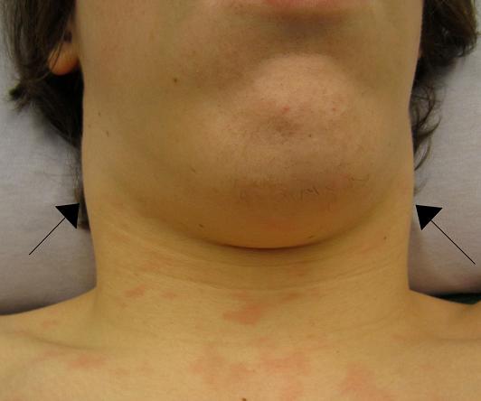 Mesenteric Lymphadenitis