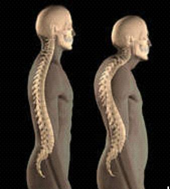 Kyphosis Symptoms Causes Diagnosis And Treatment