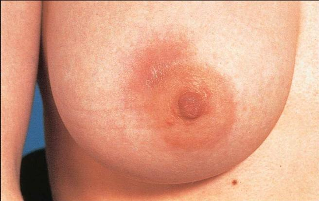 breast sore of sides