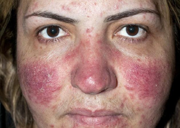 Rosacea Symptoms Causes Diagnosis Treatment