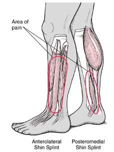 shin splint symptoms, causes, diagnosis and treatment - natural, Human Body