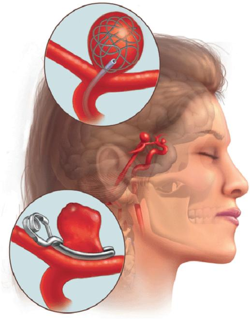 aneurysm symptoms, causes, diagnosis and treatment - natural, Human Body