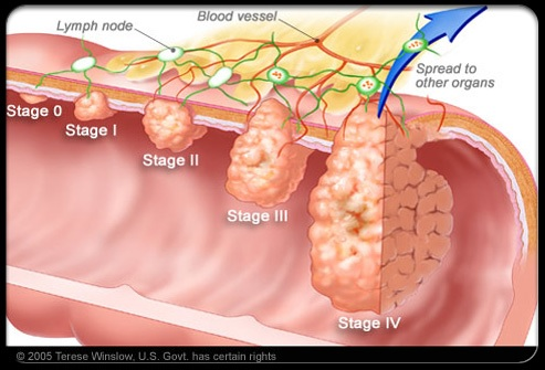 colon cancer symptoms, causes, diagnosis and treatment - natural, Human Body