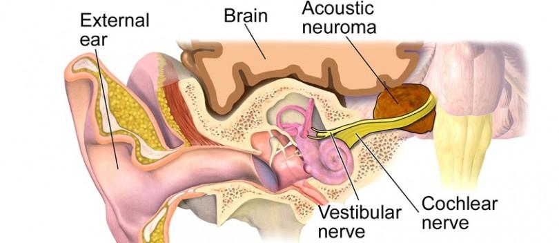 Natural Remedies For Brain Tumors