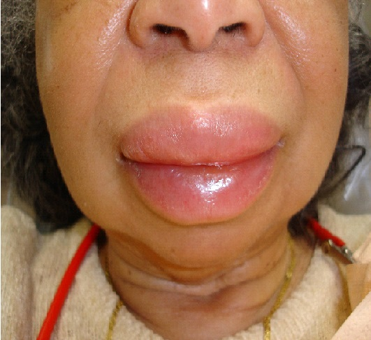 what is angioedema