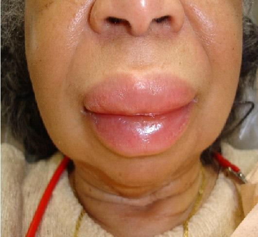 causes of angioedema