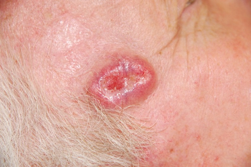 basal cell carcinoma symptoms, causes, diagnosis and treatment, Human Body