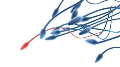 motility level Sperm
