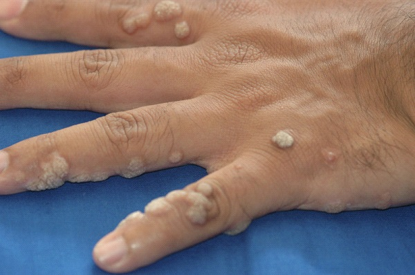 Common Warts Common Warts Sy...