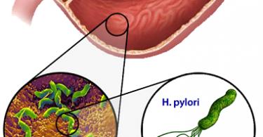 H.Pylori Infection