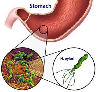H.Pylori Infection