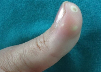 Limited Scleroderma