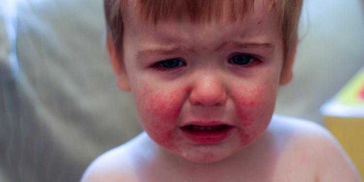 Parvovirus Infection