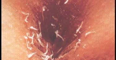 Pinworm Infection