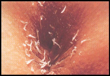 Pinworm Infection
