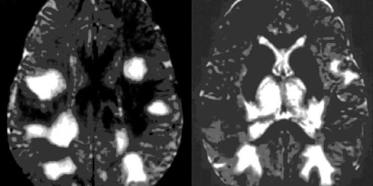 Acute Disseminated Encephalomyelitis