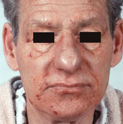 Amyloidosis Symptoms, Causes, Diagnosis and Treatment ...
