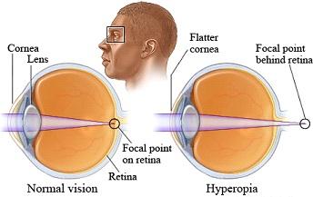 Natural Treatment For Farsightedness