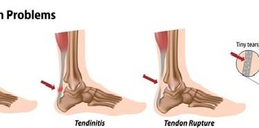 achilles-tendinitis