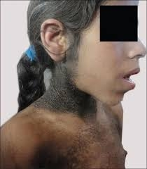Rabson-Mendenall Syndrome