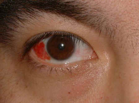 subconjunctival hemorrhage causes, symptoms, diagnosis and, Skeleton