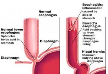 Gastro Esophageal Reflux Disease