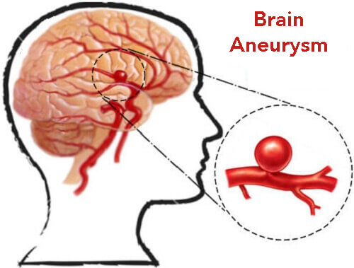 brain aneurysm causes, symptoms, diagnosis and treatment - natural, Human Body